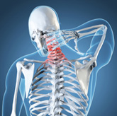 Mechanical Neck Pain