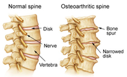 Normal and Osteoarthritic Spine